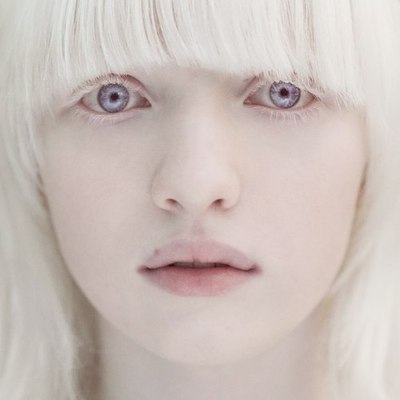 Albino Girl with Violet Eyes